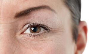 How to take care of wrinkled skin